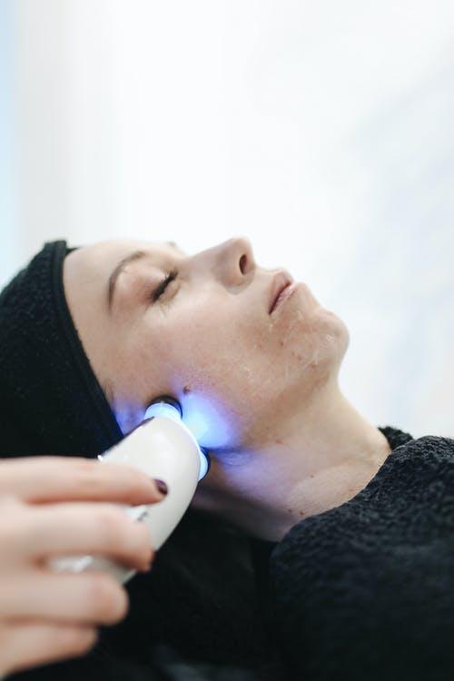 Alternativas para tratar manchas en la piel